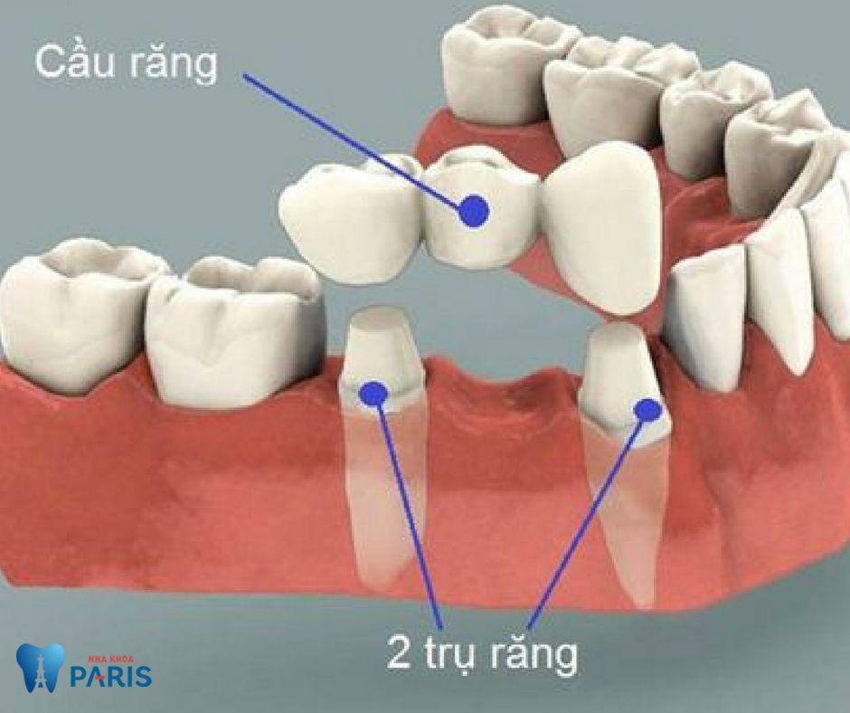 Cầu răng sứ có ƯU NHƯỢC điểm gì?