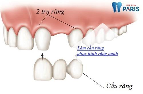 Làm cầu răng phục hình răng hiệu quả cao