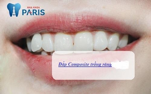 Trồng răng nanh nanh bằng đắp composite đơn giản nhanh chóng