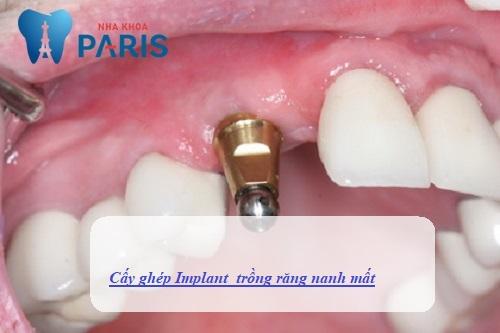 Trồng răng nanh bằng cấy ghép Implant là lựa chọn tối ưu nhất