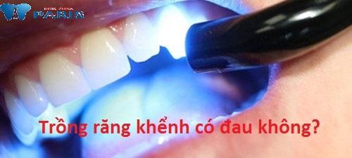 Trồng răng khểnh đẹp – lạ bền chắc thách thức thời gian2