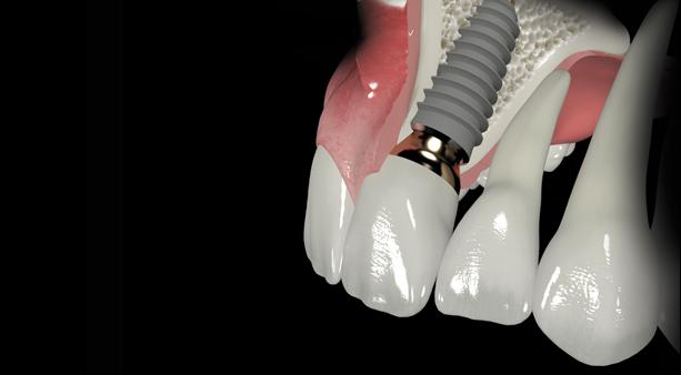 Trồng răng khểnh đẹp – lạ bền chắc thách thức thời gian5