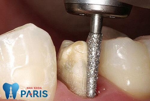 Mài cùi răng có đau không khi chỉnh lại răng cho hàm răng đều đẹp tự nhiên