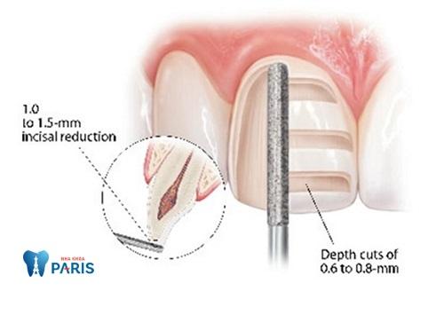 Mài cùi răng bằng công nghệ CT cho độ chính xác cao