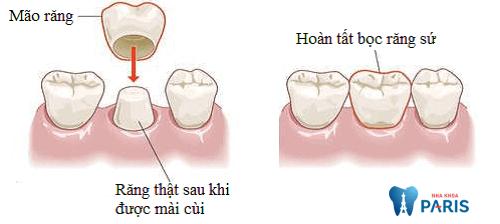 Bọc răng sứ sau khi mài giúp bảo vệ răng