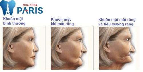 Tiêu xương răng và những biến chứng nguy hiểm rùng mình 2