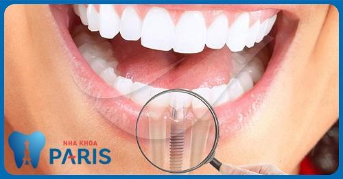 Tiêu xương răng và những biến chứng nguy hiểm rùng mình 4