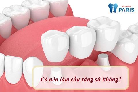 Có nên làm cầu răng sứ không?