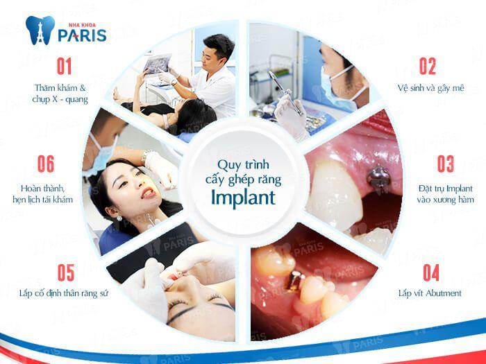 Quy trình trồng răng Implant chuẩn quốc tế tại Nha khoa Paris
