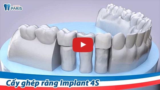 Trồng răng sứ với công nghệ Implant 4S