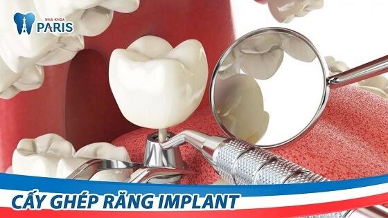 Quy trình cấy ghép Implant tại Nha khoa Paris