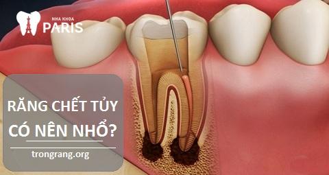 Răng chết tủy có nên nhổ không?