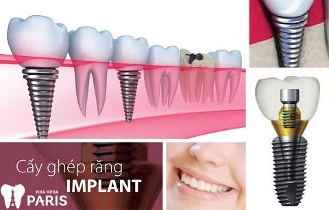 Răng chết tủy có nên nhổ không