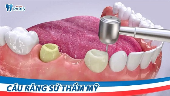 Nano Shining 5S - Giải pháp phục hình răng mất tiết kiệm